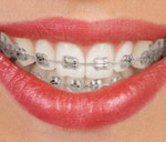 TYPES-OF_BRACES_img1
