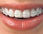 TYPES-OF_BRACES_img2