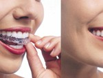 TYPES-OF_BRACES_img3